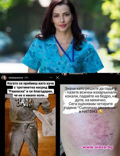 Неда Спасова се потроши с тротинетка